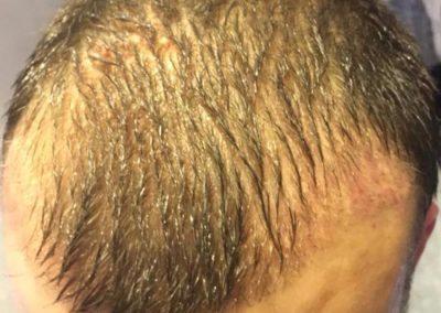 PRP Hair Before